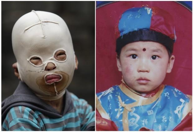 La storia di un bambino mascherato