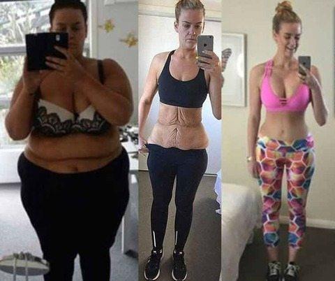 Perde 92kg, rimuove la pelle in eccesso, l'incredibile trasformazione.