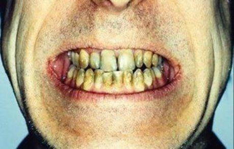 Rovina i denti, fegato e non solo, è una bevanda da evitare