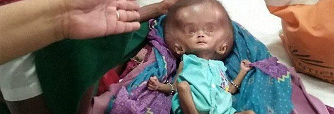 La sua testa continua a crescere, bimba d 4 mesi rischia di morire