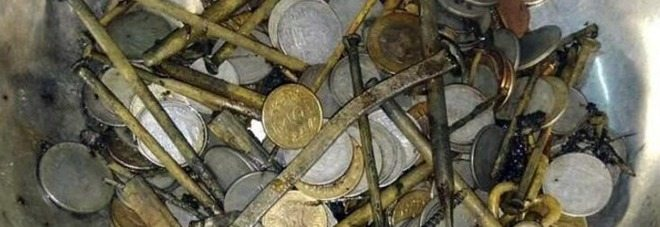 India, lamenta dolori di stomaco, estratte 263 monete e rasoi.