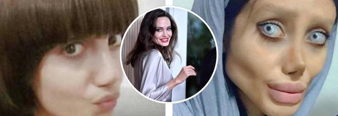 Vuole assomigliare a tutti i costi ad Angelina Jolie, ecco i risultati
