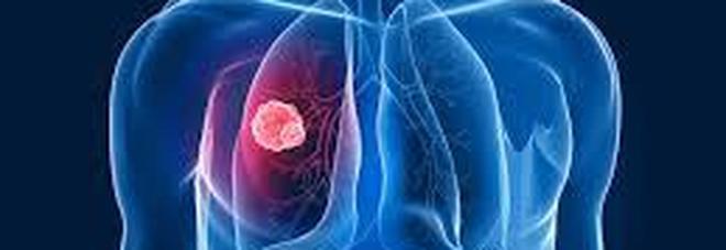 Cancro al polmone: cura senza chemioterapia