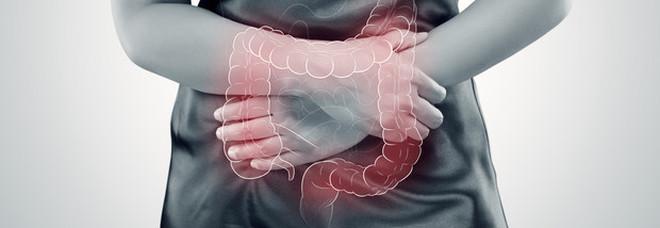 Mangiare lo yogurt 2 volte a settimana, aiuta a prevenire il tumore dell'intestino